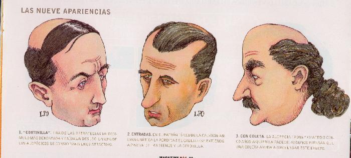 Taglio capelli uomo con calvizie
